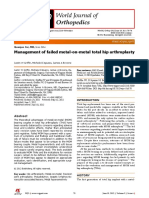 Management of failed metal-on-metal total hip arthroplasty