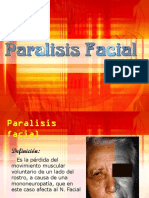 Paralisis Facial 8059 8397