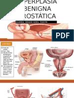 Hiperplasia Benigna Prostática (2)