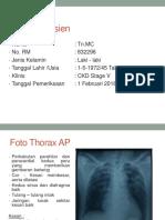 Case Edema Paru Dan Gambaran Radiologi Edema Paru