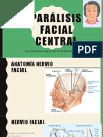 Parálisis Facial Central