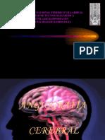 Angiografia Cerebral Dx