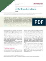 Definicion Del Sindrome de Brugada