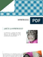 Hipertricosis Camila