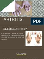 4. Artritis (2)
