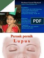 Pernak pernik Lupus COT.ppt