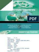Ppt hernia scrotalis inkarserata.pptx