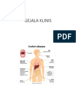Crohn's Disease PPT
