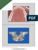 9. Prosthetically Directed Implant Parte I.pdf