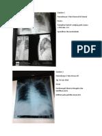 232363327-Gambaran-radiologi-spondilosis-thoracolumbal.docx