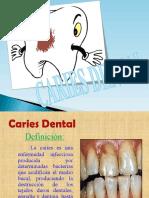 Caries Dental!![1]33