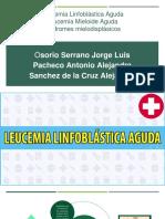 Leucemias Aguda y Sindromes Mielodisplasicos