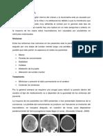 Hematomas Fisiopatologia