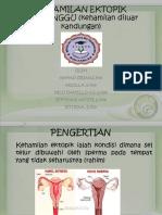 Kehamilan Ektopik Terganggu (Ket) Ppt