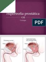 Hipertrofia prostatica