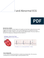1.2 Normal and Abnormal ECG