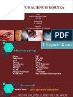 PPT-Corpus Alienum Kornea