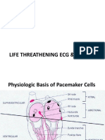 Life Threathening Ecg & Acs Ecg