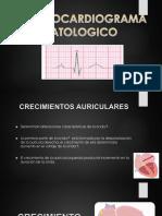 Ecg Patologico