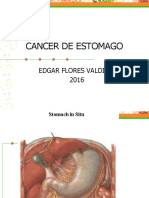 Cancer Gastrico  f