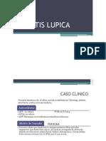 Nefritis Lupica Caso Clinico