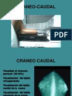 Tecnica Mamografica