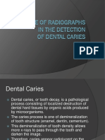 Radiographs for Dental Caries.pptx