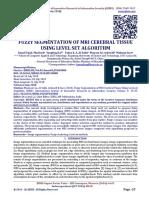 FUZZY SEGMENTATION OF MRI CEREBRAL TISSUE USING LEVEL SET ALGORITHM