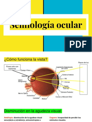 arco de soldadura flash daño ocular de diabetes