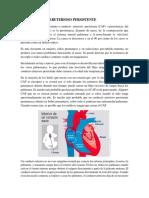 4.19 Conducto Arterioso Persistente