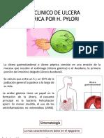 CASO CLINICO DE ULCERA GASTRICA POR H.pptx