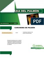 inmunodeficiencia primaria