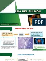 Neoplasia Del Pulmon