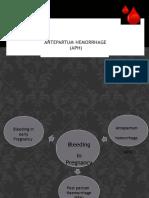 Antepartumhemorrhage