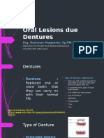 Oral Lesions Due Dentures
