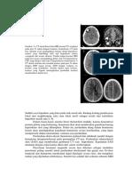 transalte jurnal radiologi.docx