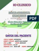 Diapositiva Caso Diana