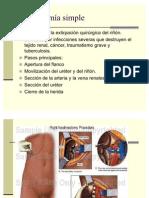 cirugias urogenitales 2