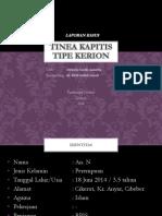 ANNETTA_tinea Kapitis (Kerion)