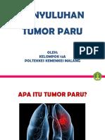 LEMBAR BALIK TB PARU by lita,farchia, ika, farah polkesma 2016