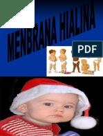 MENBRANA HUIALINA.ppt