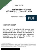 Teratoma Ovarico Quistico Maduro
