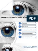 Eye Scanning Ophthalmology PowerPoint Template