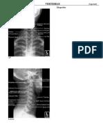 Radiologi Vertebrae
