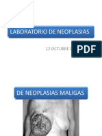 88645644-NEOPLASIAS-MALIGNAS.pptx