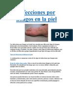 Infecciones Por Hongos en La Piel PDF GRATIS.