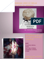 Hemorragia Obstétrica Escuela Medicina 2016 (1)