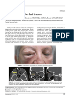 Palpebral edema after facial trauma