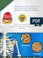 Osteopetrosis - exposición