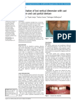 Rehabilitation of lost vertical dimension with cast post core and cast partial denture